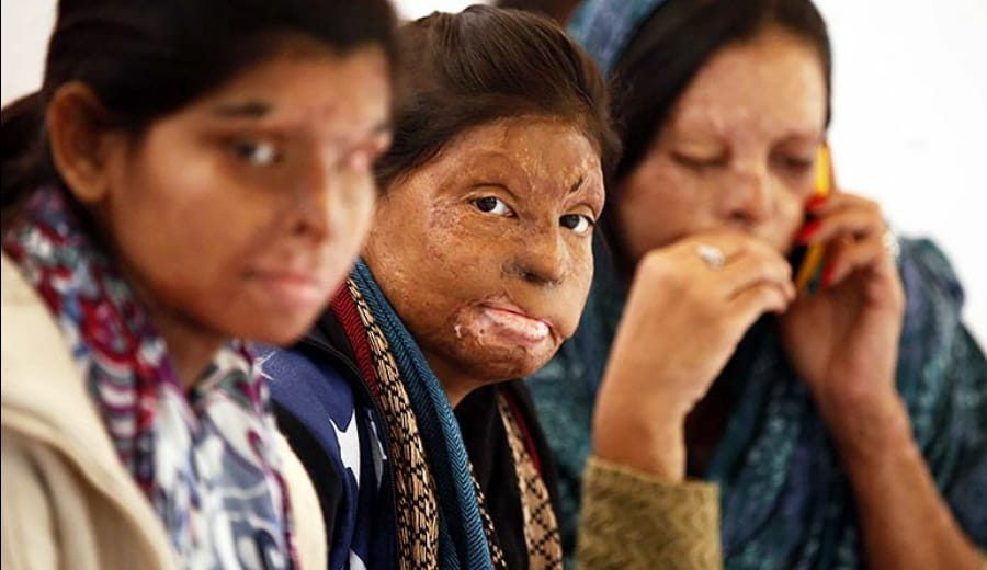 Acid Attack: Scars On India's Face