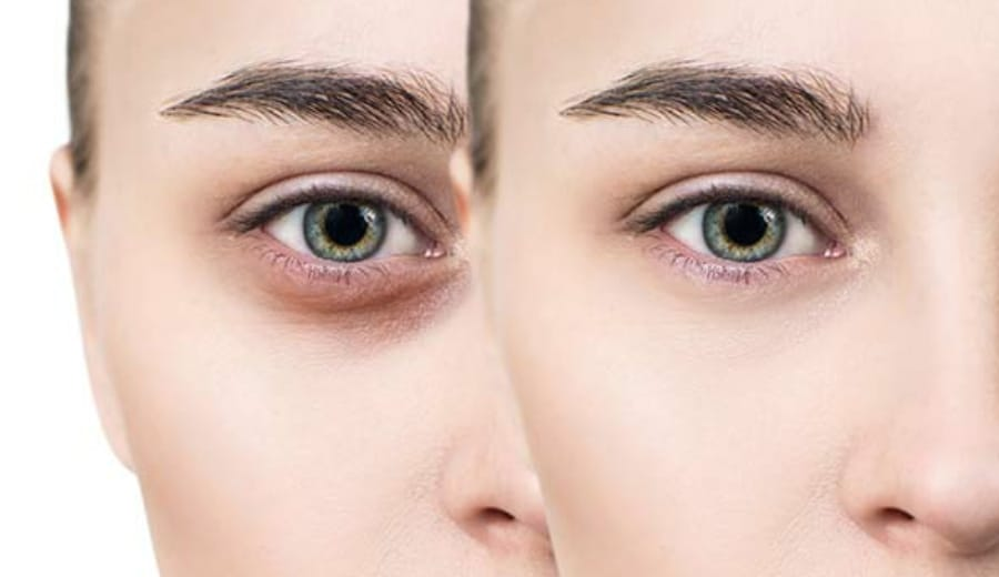 Are IIT girls afraid of dark circles?
