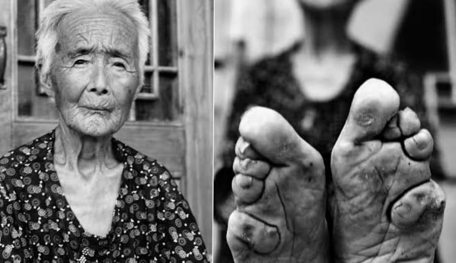 The Art of 'Foot Binding'
