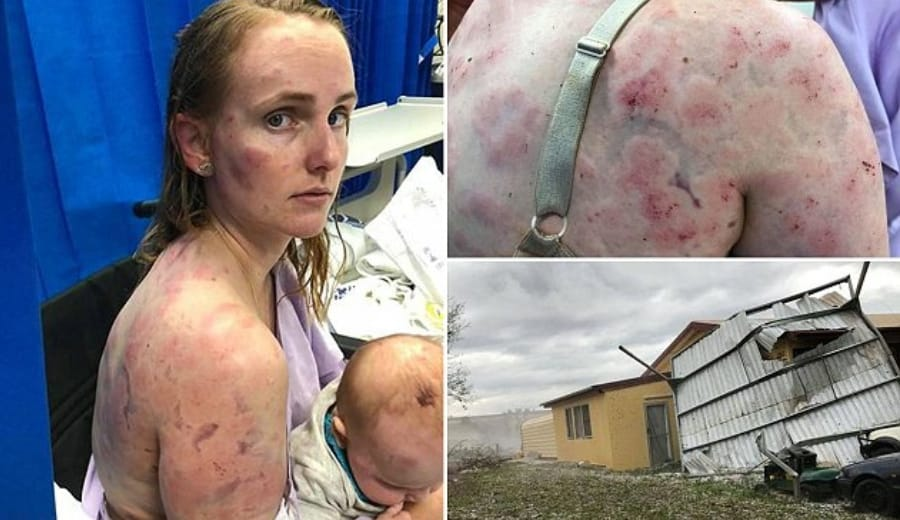 Brave Mom becomes human shield to save infant daughter from hailstorm in Australia